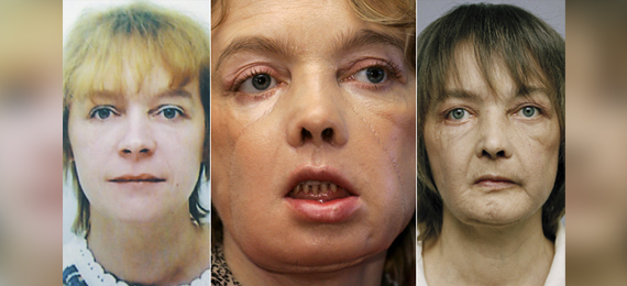 Isabelle Dinoire Facial Transplant